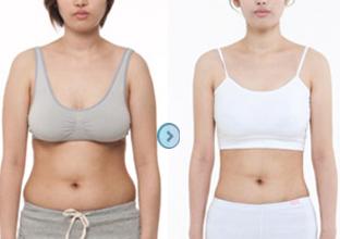 少林功夫-重庆美仑美奂 冷冻溶脂 目前最好的减肥方式